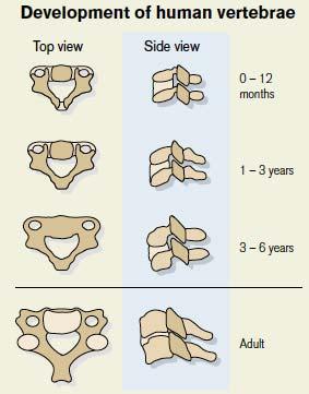 vertebraecarseat